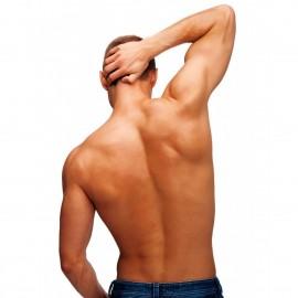 Fotodepilación de espalda